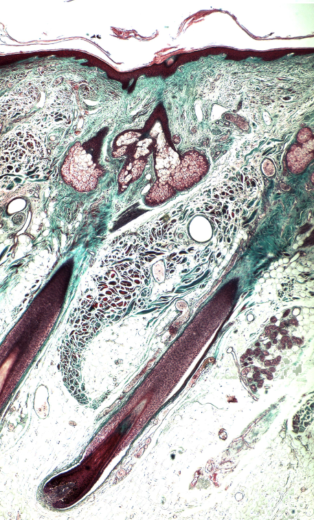 Section of human scalp skin